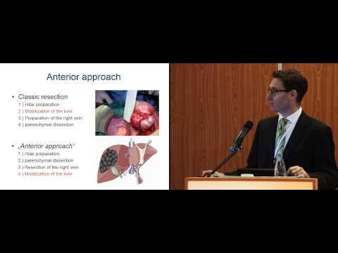 Первичный рак печени. Хирургическое лечение. Современные возможности. Видеофильм