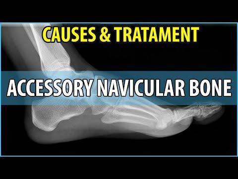 Osteochondrose kann mit dem linken Arm und Bein begeistert sein