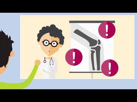 Osteocondrosi cervicale male una parte della testa