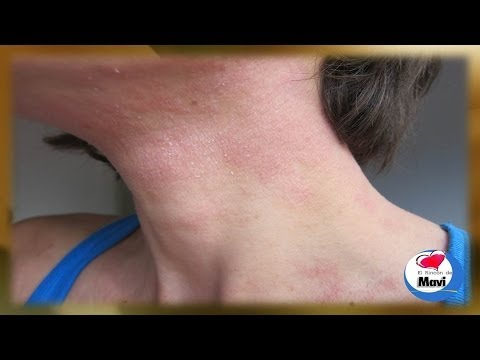 Como discernir atopichesky la dermatitis de la foto