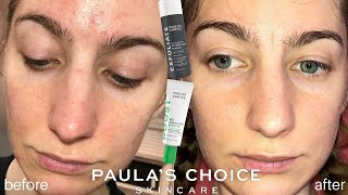 Paula's Choice Skincare Results + Review