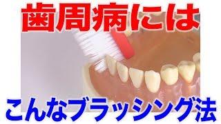 歯周病を予防するブラッシングのコツ