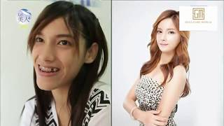 let me in korean plastic surgery show indonesia sub - TH-Clip