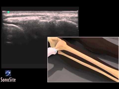 Schmerzen in der linken Seite des Nabels von der Rückseite