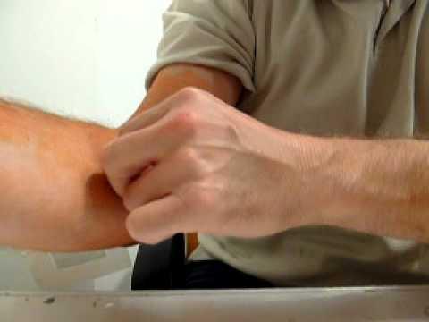 Wie das Ekzem auf den Händen medikamentosno zu behandeln
