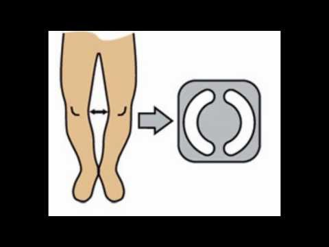 Video Bow legs, knock knees, genu varum correction treatment exercises