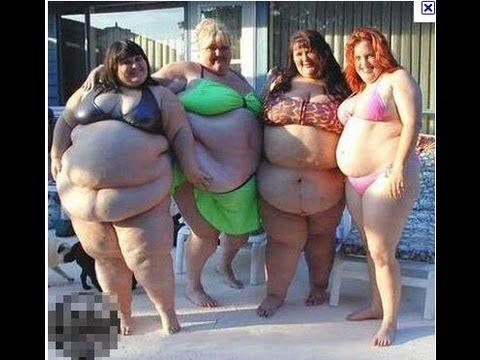 Obesity   Ожирение.