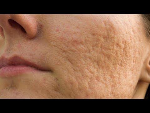 Pigmentazione irregolare di pelle
