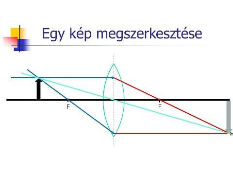 A látás kezelésének hagyományos módszerei