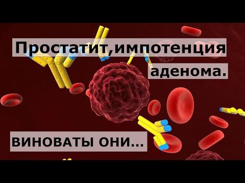 Лечение на простатит с SDA 2