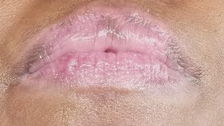 What Is Causing Woman's Dry and Inflamed Lips?