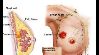 Breast cancer is a malignant (cancerous) growth that begins in the tissue of the breast