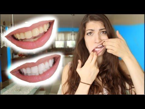 How to Whiten Teeth in 2 Minutes! [guaranteed whiten teeth]