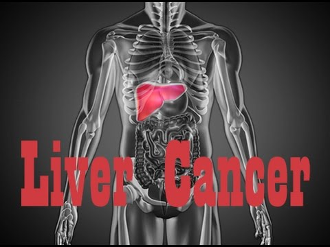Video How Liver Cancer Affects the Body