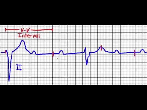 Blutdruck vegetativer Dystonie-Kreislauf