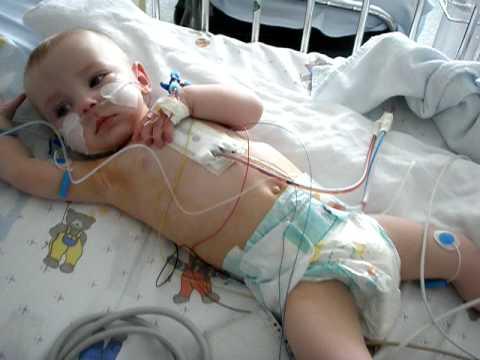 Ksenia Borodina klatki piersiowej przed operacją