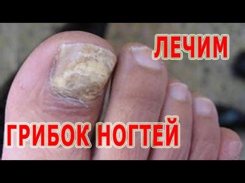 Buona crema di piede da un fungo