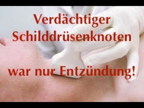 Niedriger Blutzucker Symptome