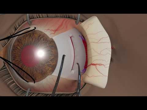 Nou în tratamentul vederii
