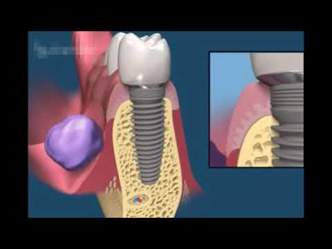 Как происходит протезирование имплантами. Ортопедическая стоматология.