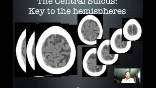 Central Sulcus: Key to the hemispheres