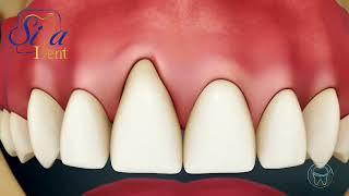 تحلیل رفتن لثه | دندانپزشکی سیمادنت