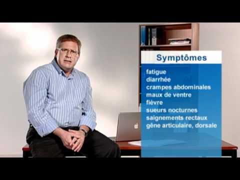 Que faire avec la varicosité et que traite