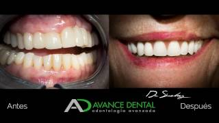 Implantes con carga inmediata - Madrid - Avance Dental