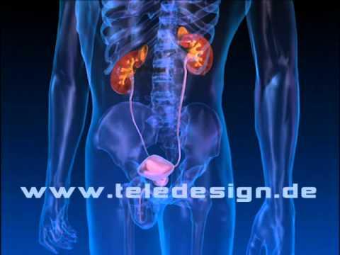Prostatavolumen von Restharn