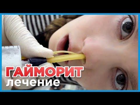 Лечение гайморита у детей. Реальное видео как лечить гайморит без прокола у ребенка.