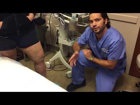 การรักษาผ่าตัดเส้นเลือดขอด
