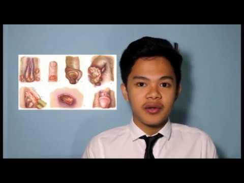 Massaggio prostatico e Oncologia