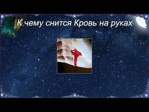 К чему снится Кровь на руках (Сонник)
