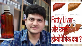 Fatty liver ! Homeopathic Medicine for Fatty liver ? My Combination !!