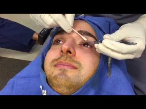 Eyelid Ptosis – Droopy Eyelid Surgery – Hidden Incision