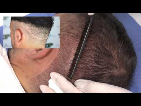 Rassegne di vitamine ledis una formula per capelli di pelle e risposte di struttura di unghie