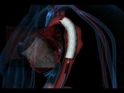 La pression de lhypertension rénale