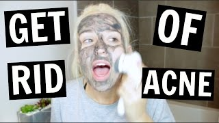 how to get rid of acne like a DAMN PRO