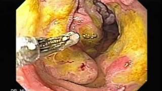 Endoscopia de Linfoma Gastroduodenal (Maltoma)