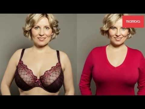 Asymetria piersi przed i po zabiegu