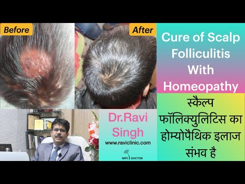 Scalp Folliculitis in a Child Cured with Homeopathy