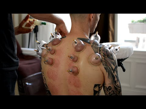 Paggamot pagkatapos ng pagtitistis dibdib tumor