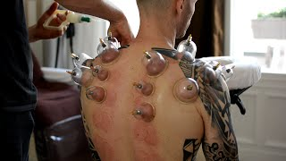 ASMR Chair Massage Back & Neck, No Talking - Cupping Therapy, Gua Sha Pt 2