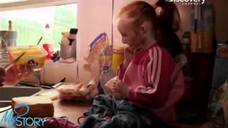 Смотреть онлайн Девочка, которая в 5 лет весит всего 3,5 кг
