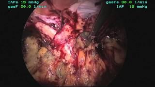 Totally Extra-Peritoneal Laparoscopic Repair Of A Femoral Hernia