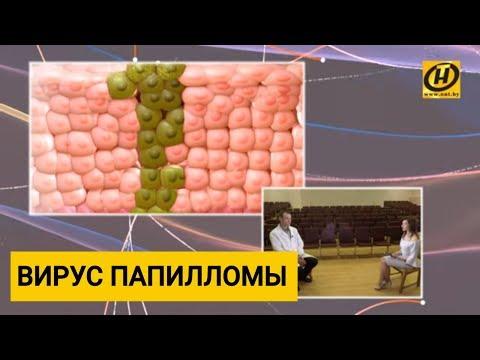 Профилактика вируса папилломы человека, как лечить?
