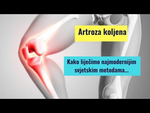 Artroza celei de a doua articulații a genunchiului