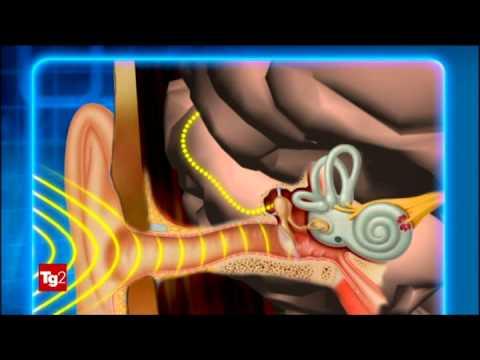 Osteocondrosi cervicale come sedersi
