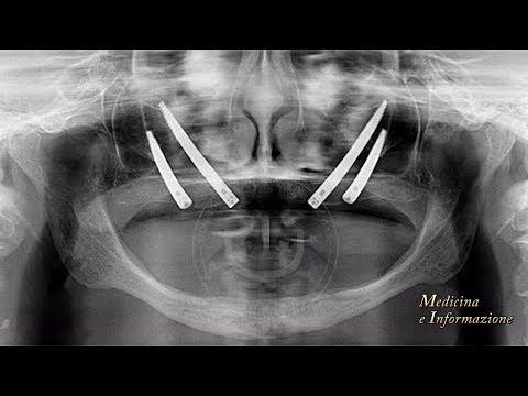 Artrite di psoriatichesky a psoriasi