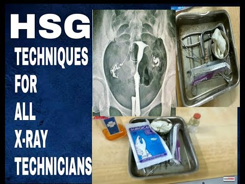 HSG TECHNIQUES FOR ALL XRAY TECHNICIANS,  ANATOMY AND PHYSIOLOGY PART -49